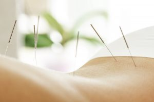 Electro Acupuncture has been proven to decrease pain, accelerate healing, and significantly reduce inflammation, edema, and swelling.